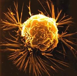 Trị bệnh ung thư bằng virus
