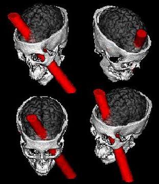 Xương sọ của Phineas Gage đã bị thanh sắt xuyên thủng từ dưới gò má trái thẳng lên đỉnh đầu