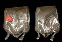Sự chuyển đổi gien đột ngột làm cho các khối u co rút lại