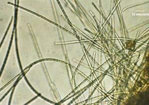 Vi khuẩn biển có thể tạo ra nguồn năng lượng thân thiện với môi trường