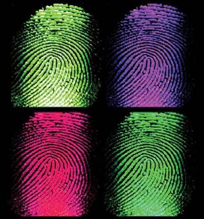Không dấu vân tay - một rối loạn hiếm gặp