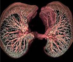Ứng dụng thành công công nghệ súc rửa phổi