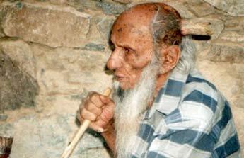 Chiếc sừng kỳ lạ của cụ già Yemen