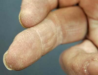Làm được điều không thể: Mọc lại ngón tay bị cắt cụt