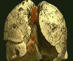 Phát hiện bệnh ung thư phổi qua... hơi thở