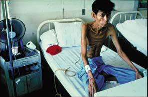 Phát hiện sớm và điều trị lao cho người nhiễm HIV