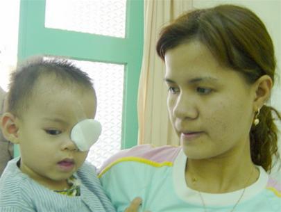 Bệnh lý mắt bẩm sinh ở trẻ nhỏ: Có thể mù nếu không phát hiện sớm
