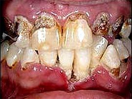Càng uống nhiều nước ngọt, càng dễ hư men răng