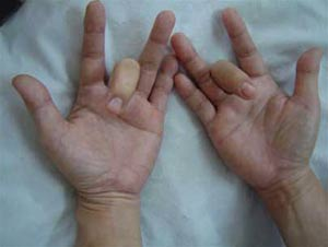 """Hội chứng """"ngón tay bật"""" là gì?"""