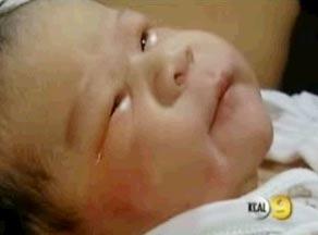 Em bé Mỹ đầu tiên ra đời từ tinh trùng và trứng đông lạnh