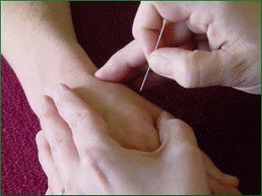Châm cứu và xoa bóp giúp làm dịu cơn đau sau phẫu thuật ung thư