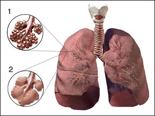 Phương pháp điều trị mới giúp ích cho người bị khí phế thủng