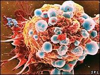 Phân tử DCA có triển vọng giúp chữa ung thư