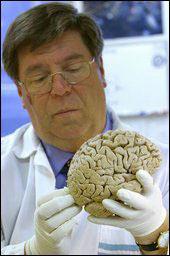 Phát hiện khu vực trong não liên quan đến tính bạo lực