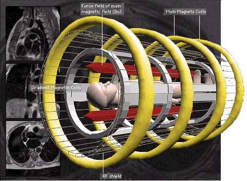 Thiết bị cộng hưởng từ đạt độ phân giải 90 nm