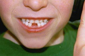 Trẻ em đang sâu răng nhiều hơn