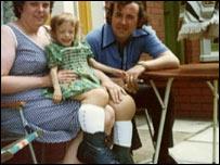 Mandy được sinh ra với đôi chân to bất thường