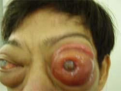 Báo động ung thư mắt