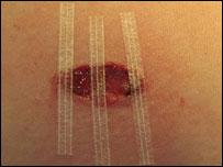 Những mảng da được thay thế bằng da nhân tạo.