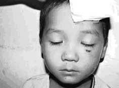 Cả ổ sán ký sinh trong mắt người hơn 1 năm
