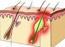 Viêm nang lông bệnh hay gặp trong mùa nóng