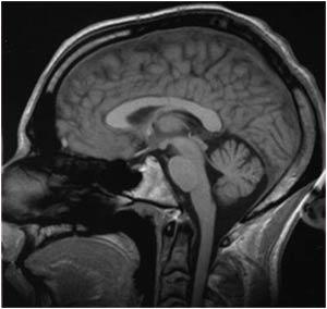 """Các nhà khoa học tiết lộ """"diện mạo"""" mới của trí nhớ"""