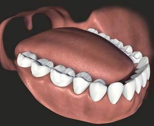 Răng lệch lạc, chữa thế nào?