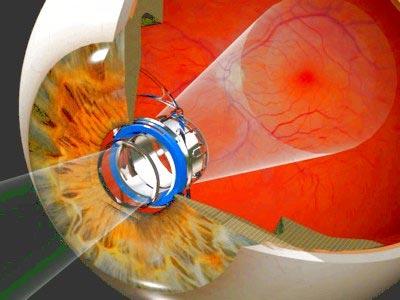 Kính viễn vọng siêu nhỏ giúp cải thiện thị lực