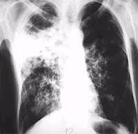 Nguy cơ xuất hiện loại vi khuẩn lao kháng thuốc cực kỳ nguy hiểm tại VN