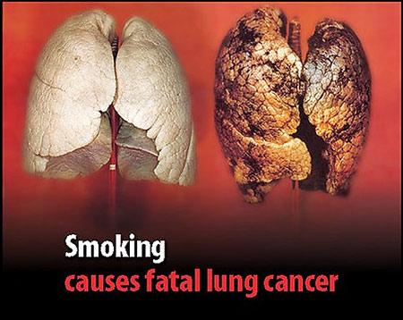 Anh: Bắt buộc in hình ảnh khuyến cáo về tác hại của thuốc lá lên vỏ bao
