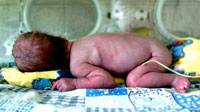 Em bé không miệng ra đời ở Ukraina