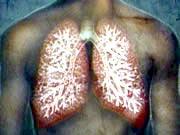 Bệnh phổi tắc nghẽn mãn tính, một hiểm họa thế giới
