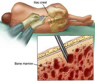 Hội chứng thực bào tế bào máu