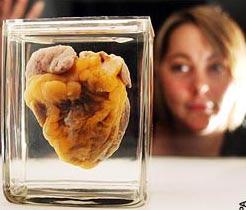 Xem trưng bày trái tim của chính mình