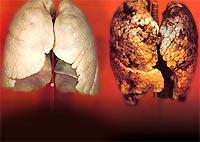 Đầu lọc thuốc lá bị kết tội làm tăng ung thư phổi