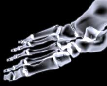 Chuyện về các nhà khoa học tìm ra tia X và tia xạ