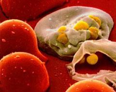 Đột phá mới chữa trị AIDS