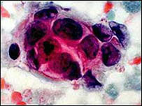 Tế bào gốc có thể là một nguyên nhân khiến ung thư lây lan