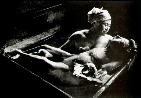 Nạn nhân bị nhiễm độc bởi chất thủy ngân ở khu vực Minamata đầu những năm 1950