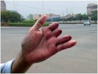 Phẫu thuật thay ngón tay bằng ngón chân