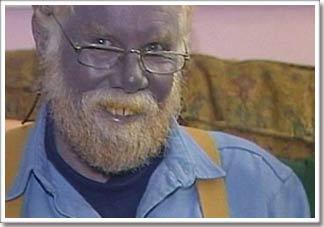 Người đàn ông da xanh