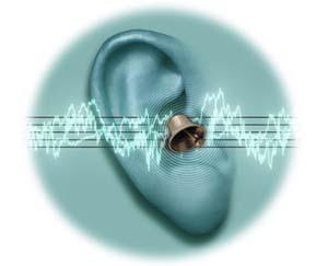 Những liệu pháp mới điều trị bệnh ù tai
