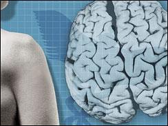 Tay chân ngắn liên quan đến nguy cơ bị mất trí
