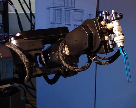 Lần đầu tiên, robot bóc tách khối u não