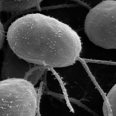 Tìm kiếm phương pháp điều trị khiếm thị ở tảo