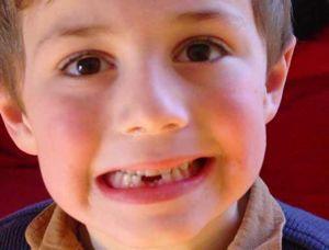 Mất răng sớm ảnh hưởng đến sức khỏe răng miệng của trẻ