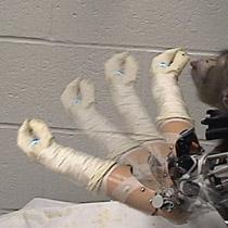 Dùng não điều khiển tay giả