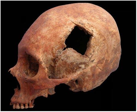 """Phẫu thuật não của người Inca thuộc dạng <i>""""trình độ cao""""</i>"""