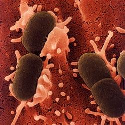 Sản phụ dễ tử vong do nhiễm E. coli