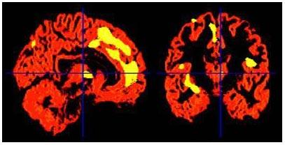 Ký ức đau buồn làm thay đổi lượng chất xám trong não